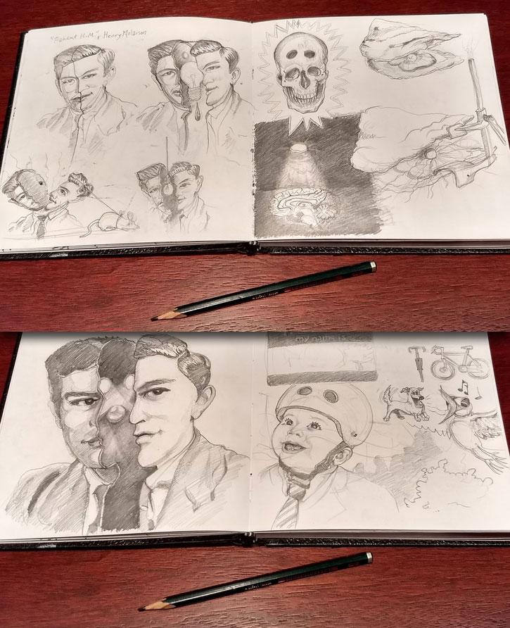 Patient HM Rough Sketches